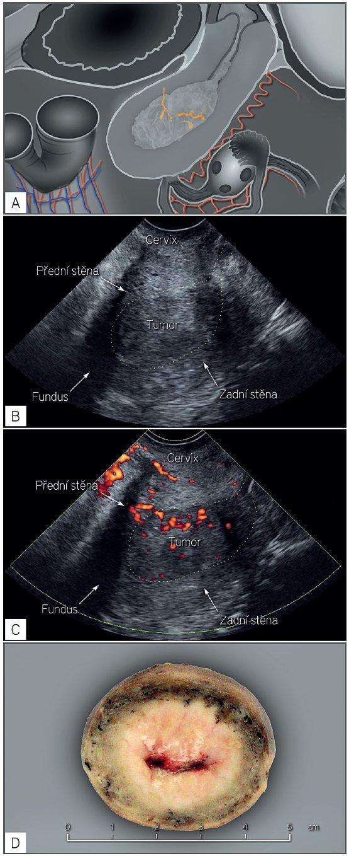 Endometriální karcinom s vysokým rizikem postižení lymfatických uzlin (FIGO stadium II)