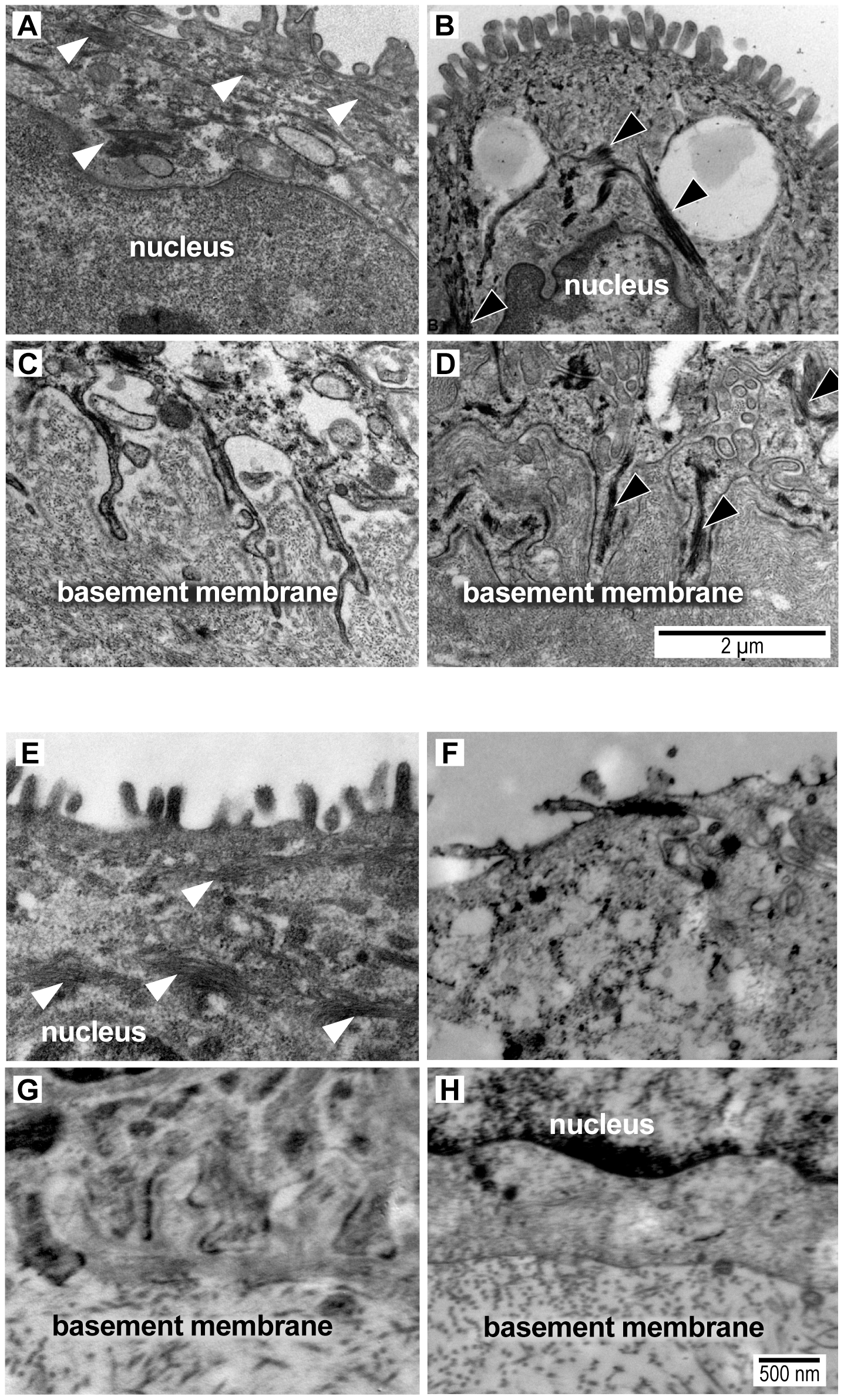 Transmission electron micrograph images of intermediate filaments (white arrowheads) in the cytoplasm and amnion foot processes from a macaque saline control (A,C) and macaque GBS sample (B,D) and from a woman at term undergoing cesarean section prior to labor (E,G) and another woman after PPROM/preterm birth (F,H).