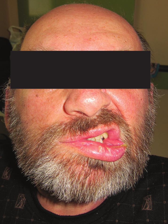 Lézia nervus facialis vpravo, 5/6 podľa House Brackmana.