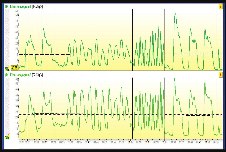 Elektromyogram: Svaly panvového dna na 4. stupeň svalovej sily.