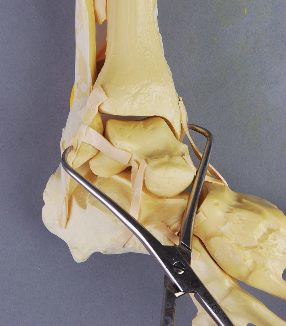 Zwippova metoda repozice distální fibuly do incisury tibie pomocí kostních kleští