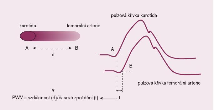 Schéma 5. Měření rychlosti pulzové vlny .