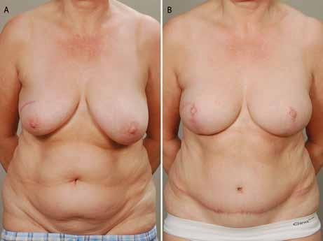 A. Zdravá nosička BRCA před kůži šetřící mastektomii s pexí a okamžitou rekonstrukcí DIEP laloky; 3B. Po prosté, kůži šetřící mastektomii s pexí a okamžitou rekonstrukcí DIEP laloky. Pacientka je spokojena s estetickým výsledkem natolik, že rekonstrukci dvorců již nechce podstoupit.