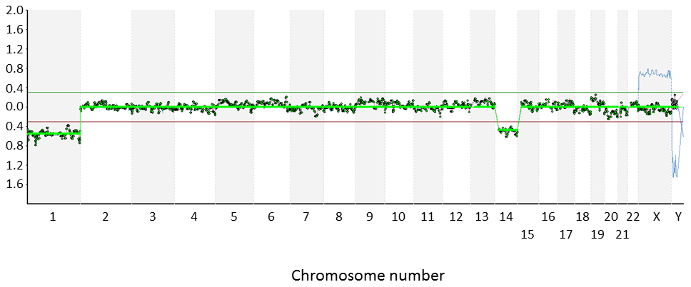 Microarray-CGH analysis of an embryo from a Robertsonian translocation carrier.