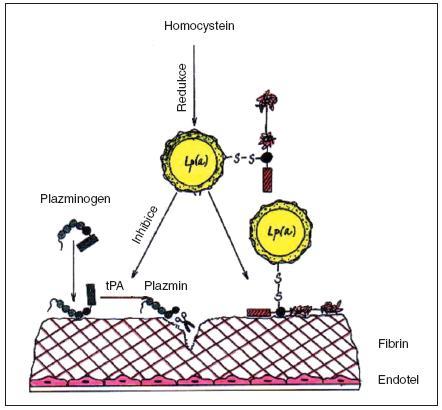Interakce hyperhomocysteinemie a vysokého Lp(a), které působí inhibici trombolytického systému PAI-1 podle Chapmana (podrobnosti v textu) [33].