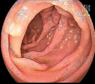 MALT lymfom jejuna u 70leté pacientky s mikrocytární anemií. Dvojbalonová enteroskopie. Fig. 4. MALT lymphoma of the jejunum in 70-year-old patient with microcytic anemia. Double-balloon enteroscopy.