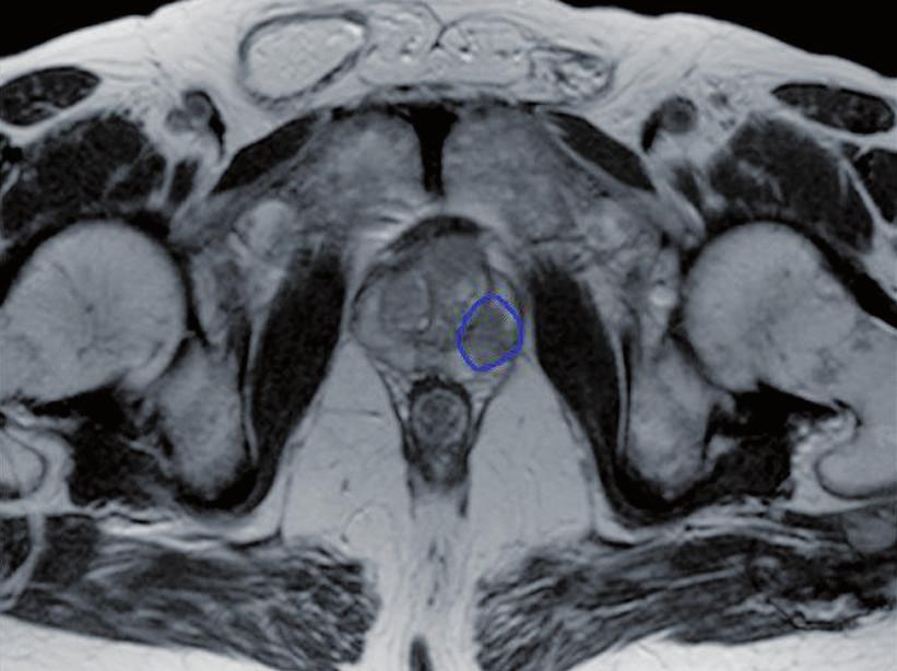 Zakreslení intraprostatické léze Fig. 1. Contour of intraprostatic lesion