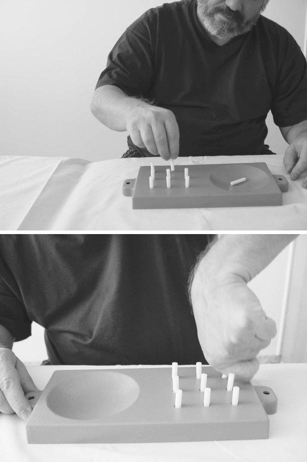 Hodnocení jemné motoriky testem NPHT. Legenda: srovnání výkonu pravé a levé ruky. Vlevo je zřetelně vidět porušený stereotyp úchopu. Pacient byl schopen vykonat zadaný úkol, ale nesplnil časový limit.