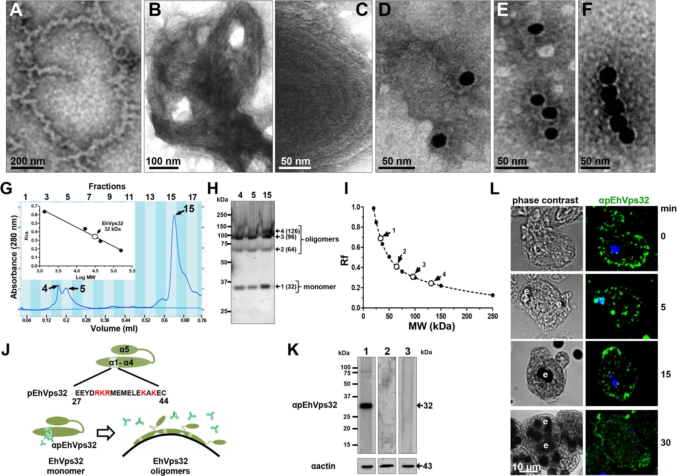 <i>In vitro</i> oligomerization of rEhVps32 and cellular localization of EhVps32 monomers.