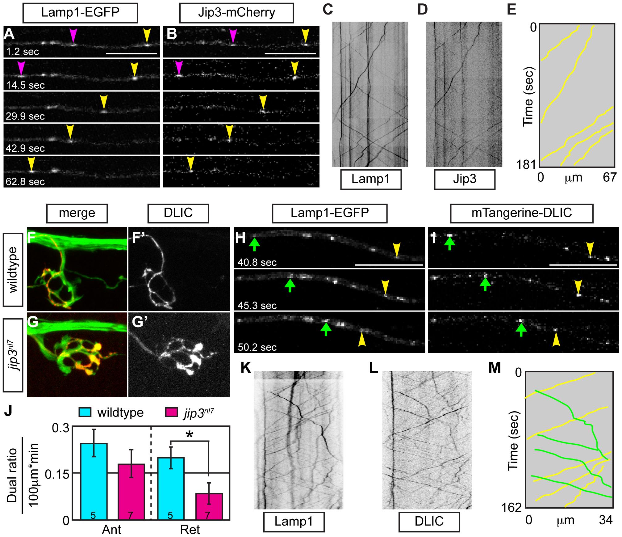 Jip3 scaffolds lysosomes to DLIC for retrograde transport.