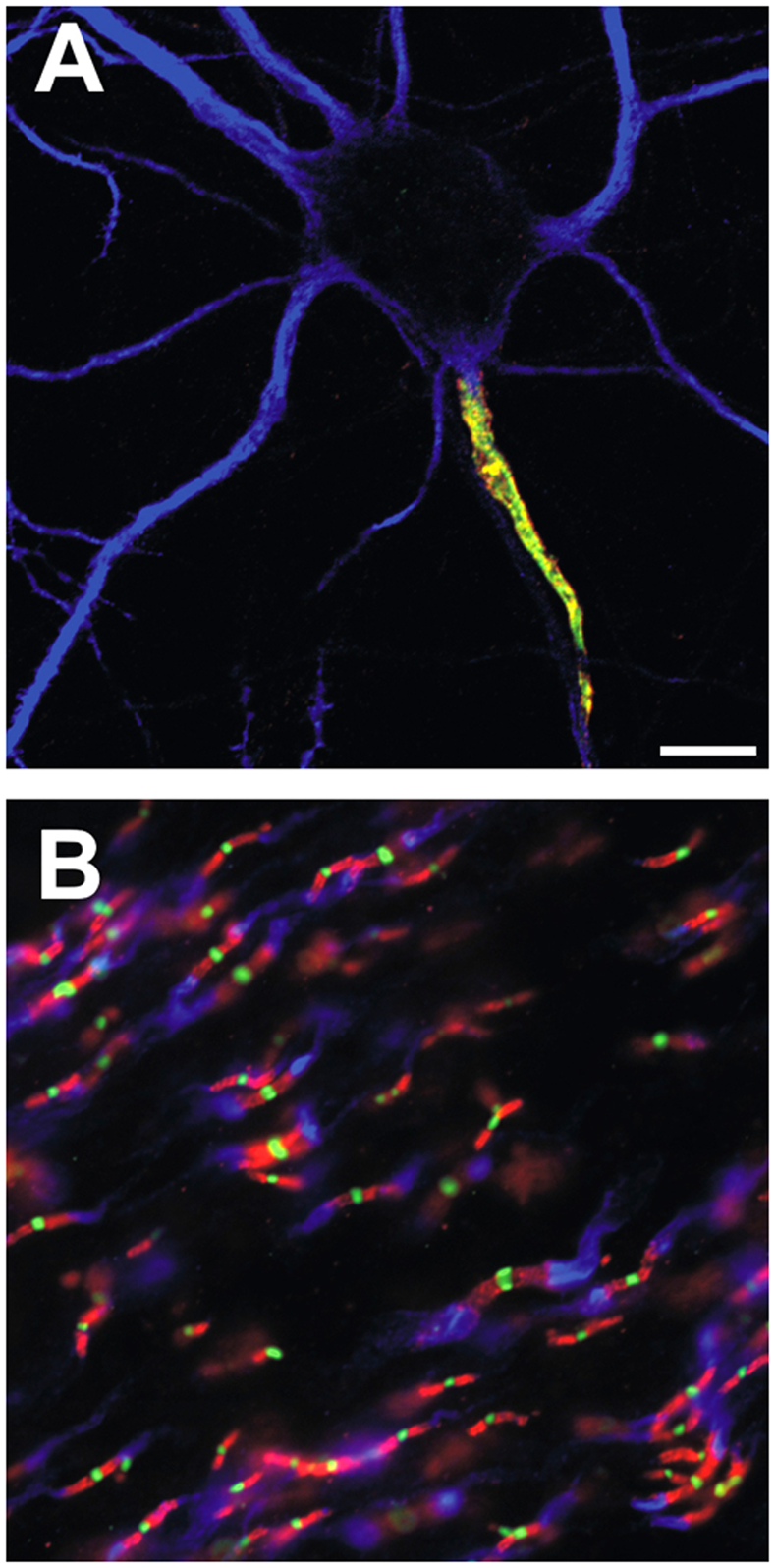 Ion channels are clustered in mammalian axons at the AIS and nodes of Ranvier.