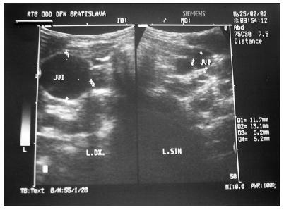 Dialatácia v. jugularis int.l.dx.