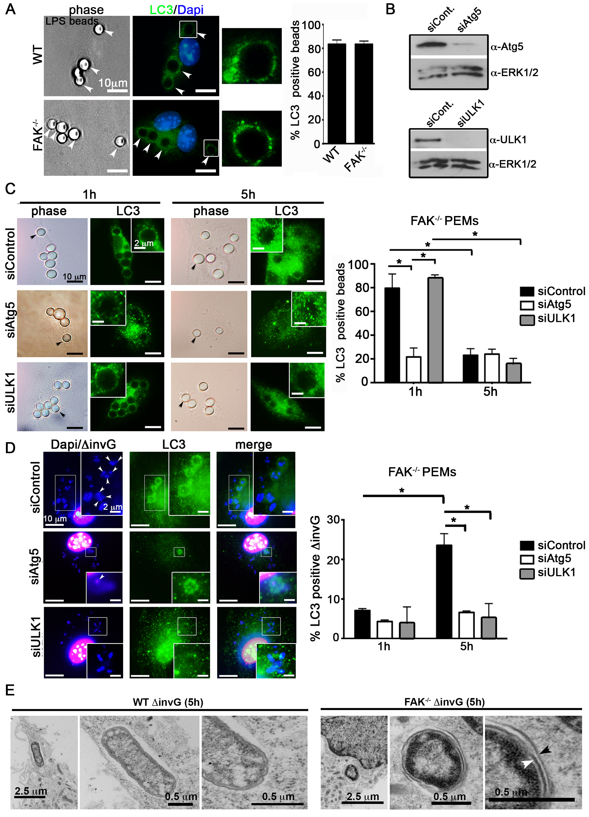 SPI-1-deficient <i>Salmonella</i> are targeted by autophagy in the absence of FAK.