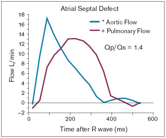 Nezávislým změřením toků v aortě a plicní tepně může být vypočítán poměr plicního/systémového průtoku.