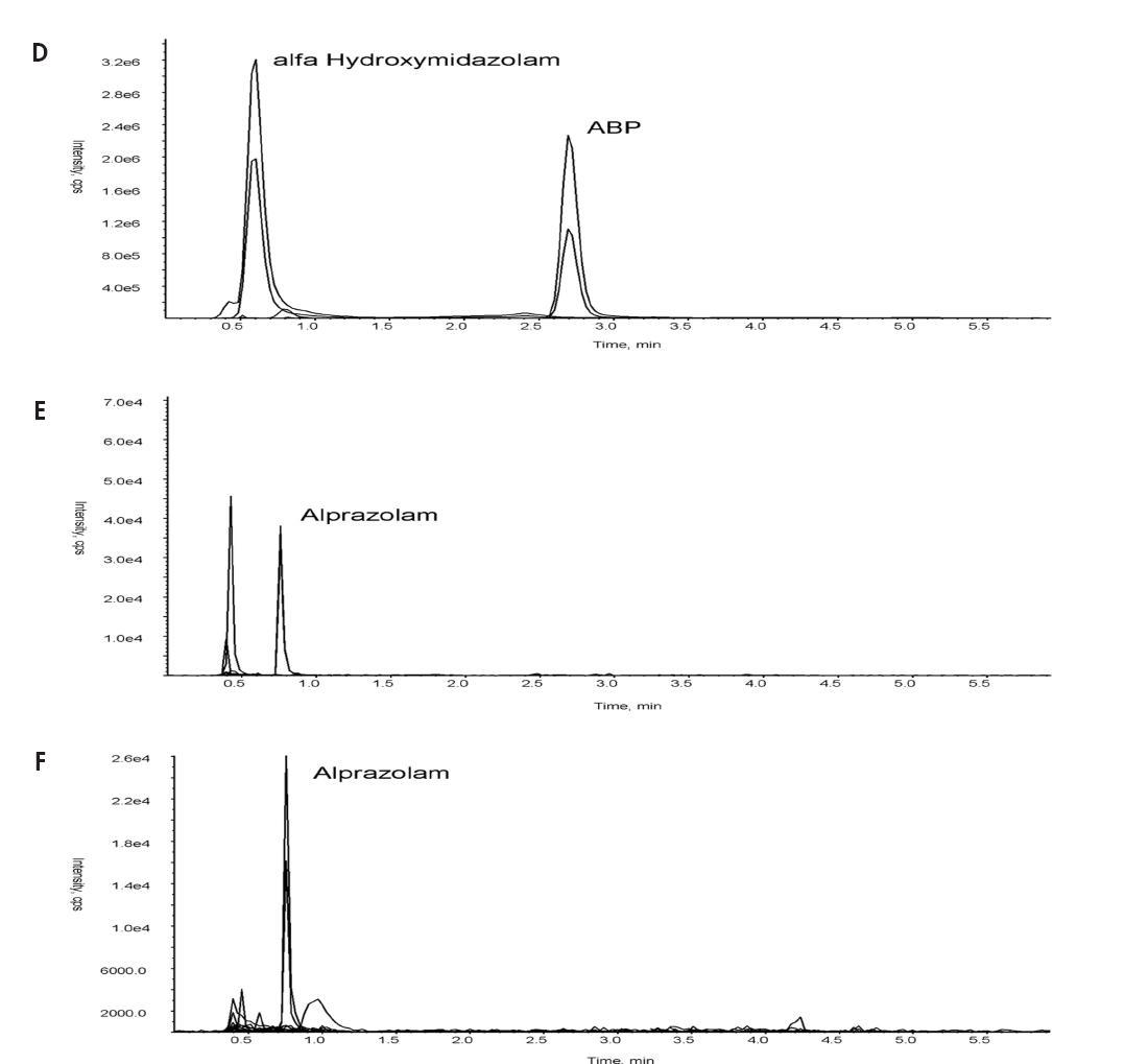 Obr. 3. Příklady SRM chromatogramů, získaných analýzou neznámých vzorků: charakteristické benzofenony ACB a MACB s minoritním nálezem diazepamu s metabolitem (A), clonazepam s metabolitem (B), tetrazepam s metabolitem (C), kombinovaný nález metabolitu midazolamu a ABP (D) a nález alprazolamu získaný analýzou moče odebrané po 8 hodinách zdravému dobrovolníkovi po požití 0,25 mg alprazolamu zpracovaný enzymatickou hydrolýzou (E) i kyselou hydrolýzou (F).
