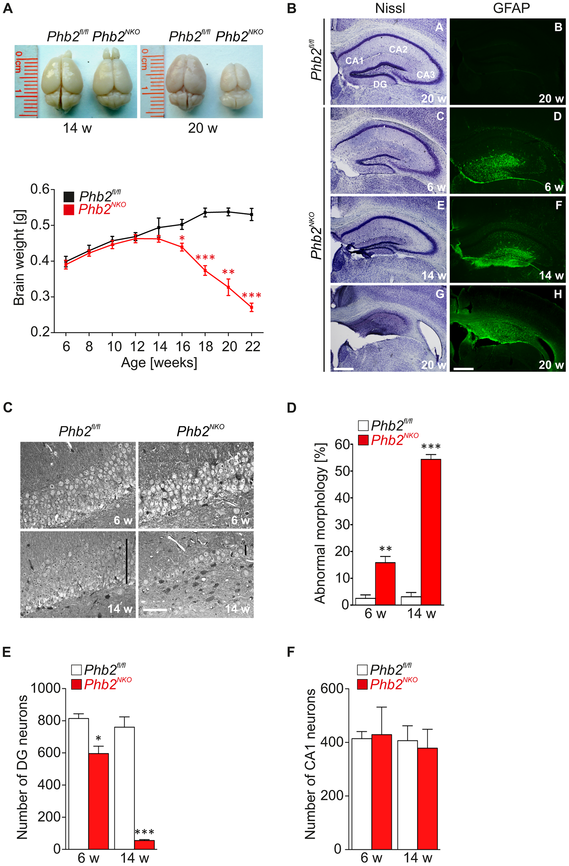 Progressive astrogliosis and loss of hippocampal neurons in <i>Phb2<sup>NKO</sup></i> mice.