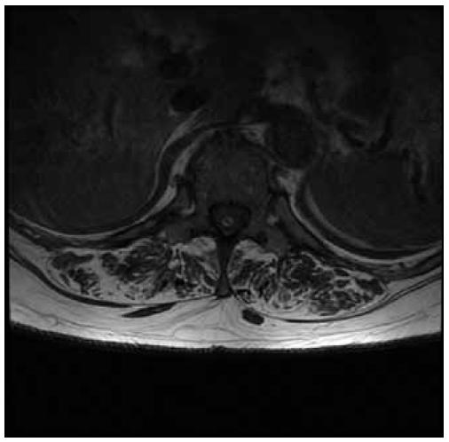 Fig. 2  Axial T1 weighted MRI scan shows granuloma formation at the tip of intrathecal catheter.