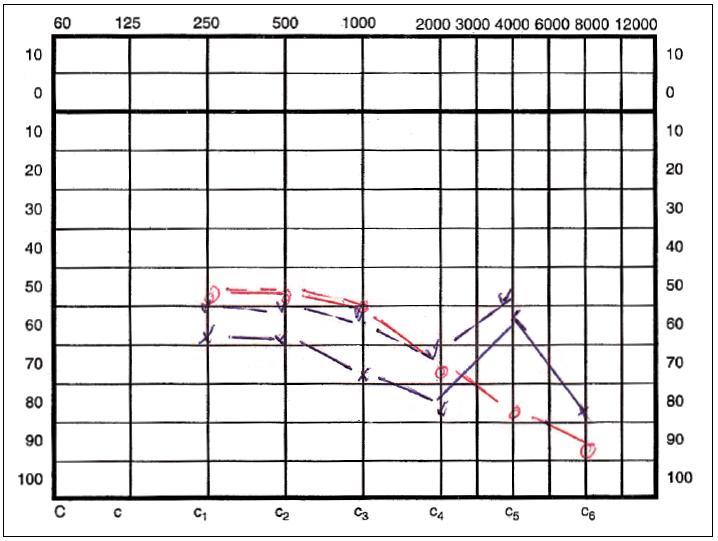 Tónový prahový audiogram pred operáciou.