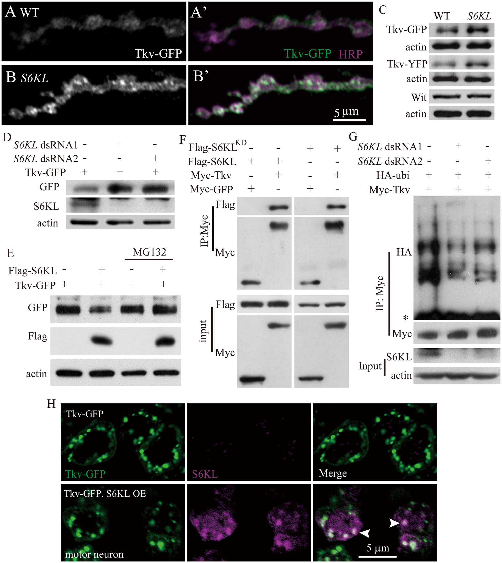 Negative regulation of Tkv protein level by S6KL via proteasomal degradation pathway.