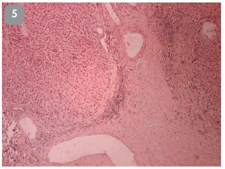 22-ročná žena s diagnózou kavernózneho hemangiómu pečene. V jeho blízkosti bolo ďalšie ložisko priemeru 2 cm, ktoré bolo použitím zobrazovacích metód diagnosticky nejasné, preto bolo tiež resekované. HE, 40x.