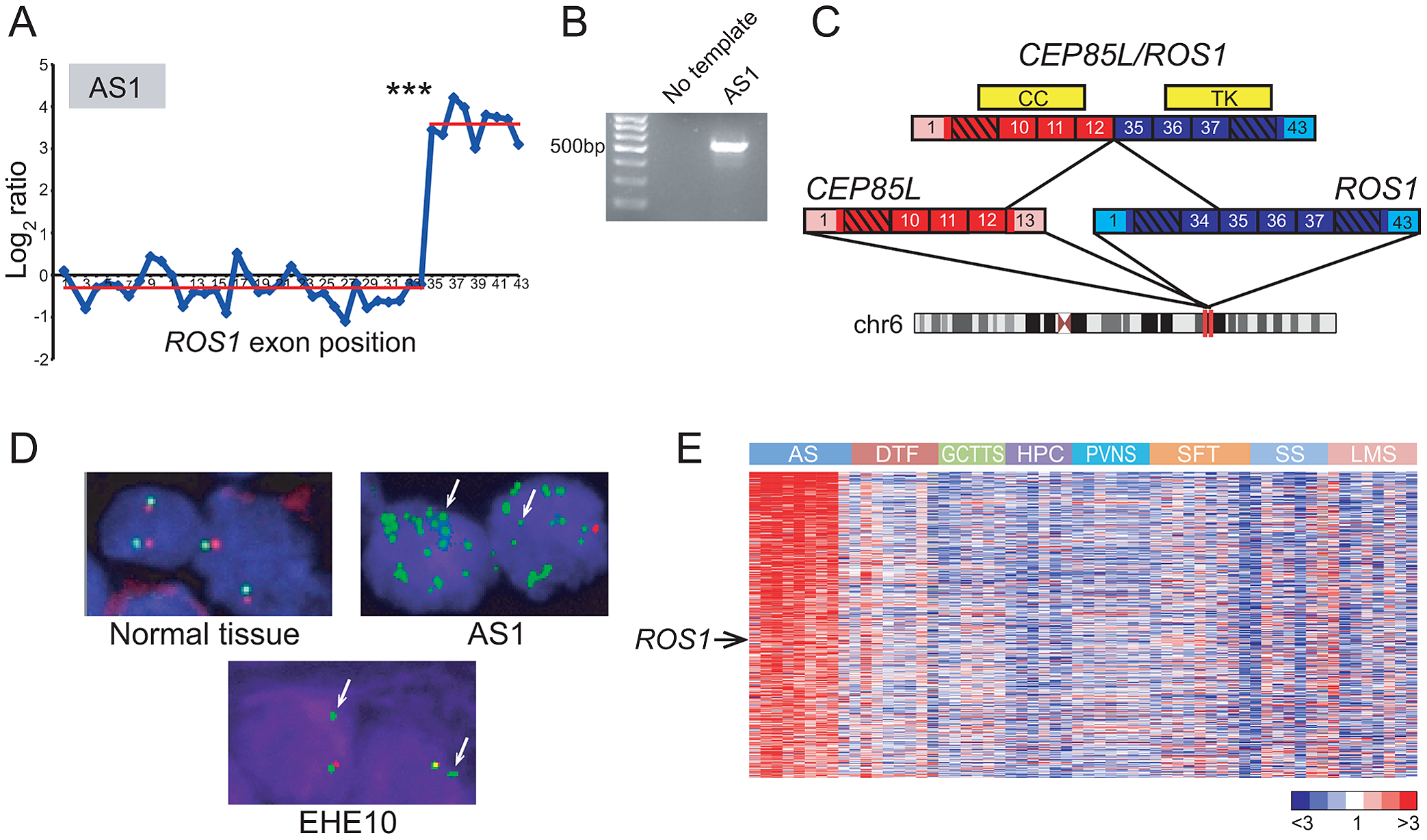 Discovery and characterization of <i>CEP85L/ROS1</i> in angiosarcoma.