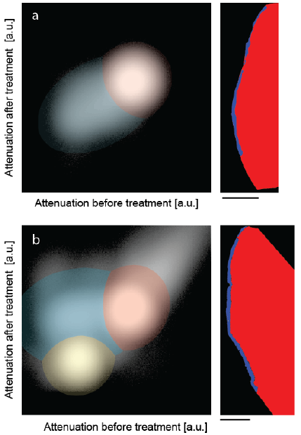 The joint histograms of the three-dimensional datasets allow segmenting the artificial lesions: (a) incubation of bare lesion and (b) incubation after peptide treatment. The selected virtual cuts through the sound enamel (red color) and the affected enamel (blue color) demonstrate the possibility of reliably segmenting the enamel lesion. The bar corresponds to the length of 500 μm.