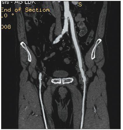 Infekce aorto-femorální cévní protézy vlevo. CT obraz tzv. plovoucí protézy. Lem tekutiny kolem cévní protézy svědčí pro infekci v celém jejím průběhu Fig. 2. Infected left aorto-femoral prosthetic graft. A so-called floating prosthesis, as detected by computed tomography. The presence of perigraft fluid indicates infection of the complete graft