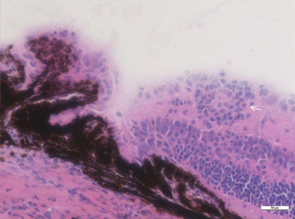 Zánětlivé ložisko ve vnitřní vrstvě sítnice v blízkosti ciliárního tělesa (šipka), zvětšení 40x
