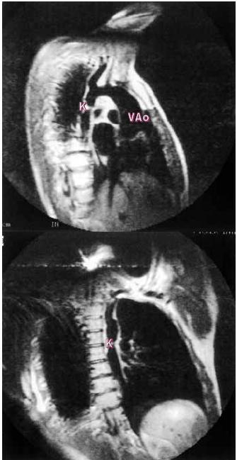 Koarktace sestupné hrudní aorty. MR-spin-echo v sagitální rovině (a) a šikmé koronální rovině (b). Je vidět jasně místo koarktace za tepnami oblouku.