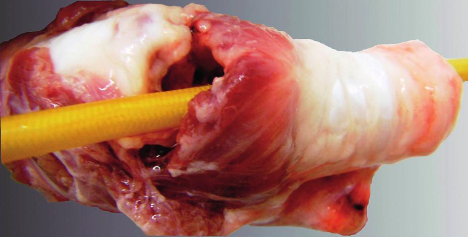 Anatomická preparace trachey s řezem skrz ligamentum cricothyroideum a zavedenou bužií