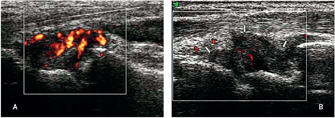 Zápěstí pacienta s aktivní revmatoidní artritidou, (B) vliv zvýšeného tlaku na sondu imitující pokles průtoku uvnitř zánětlivého panu (šipky), častá chyba začínajících sonografistů.