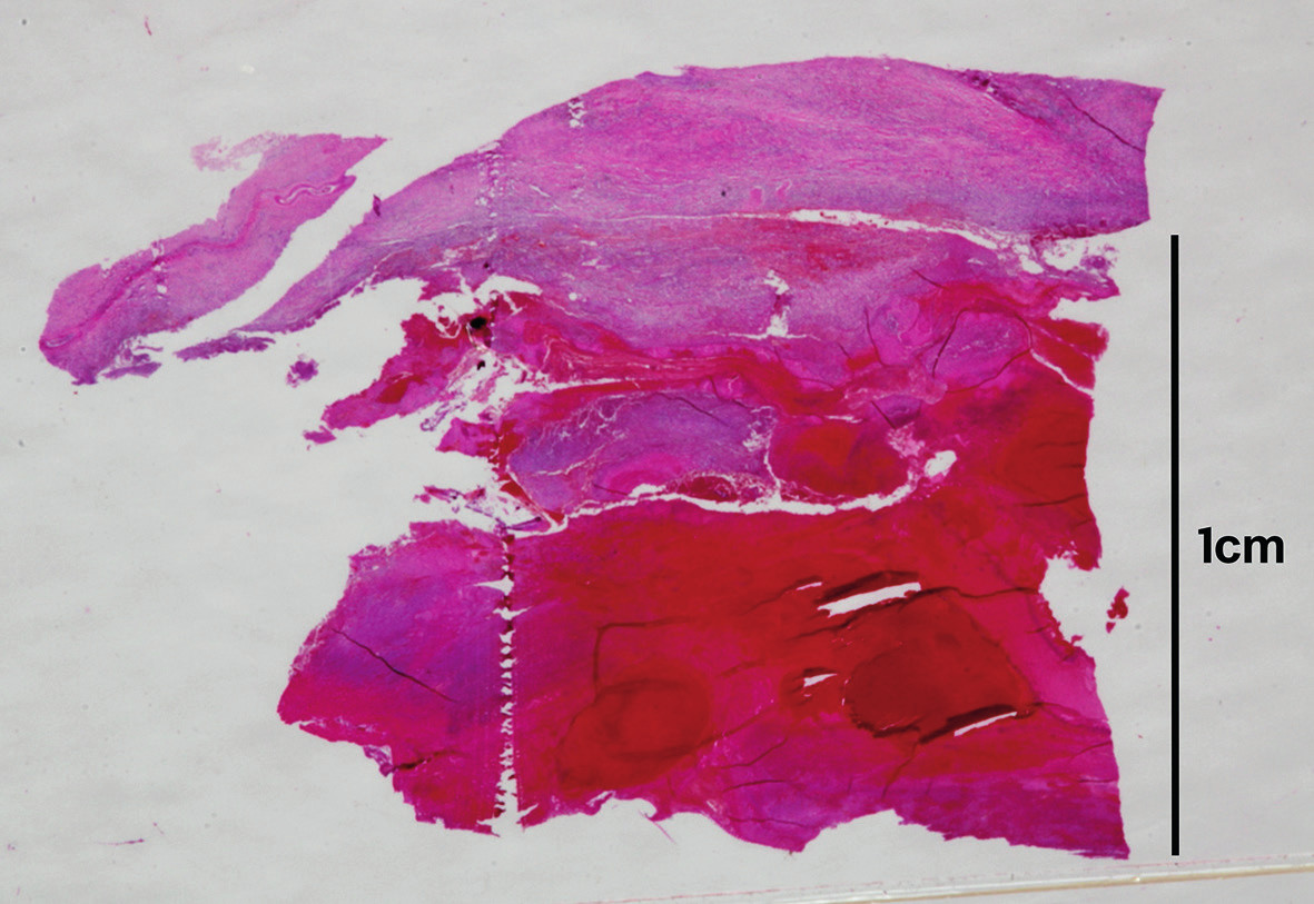 Histotopogram pseudoaneuryzmy aorty s recentným krvácaním (hematoxylín-eozín).