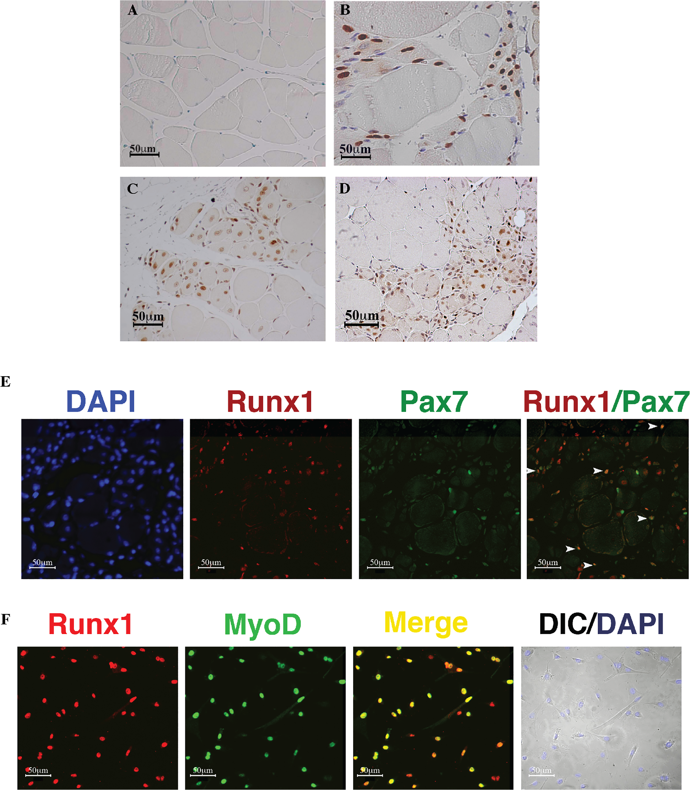 Runx1 expression in response to muscle damage.