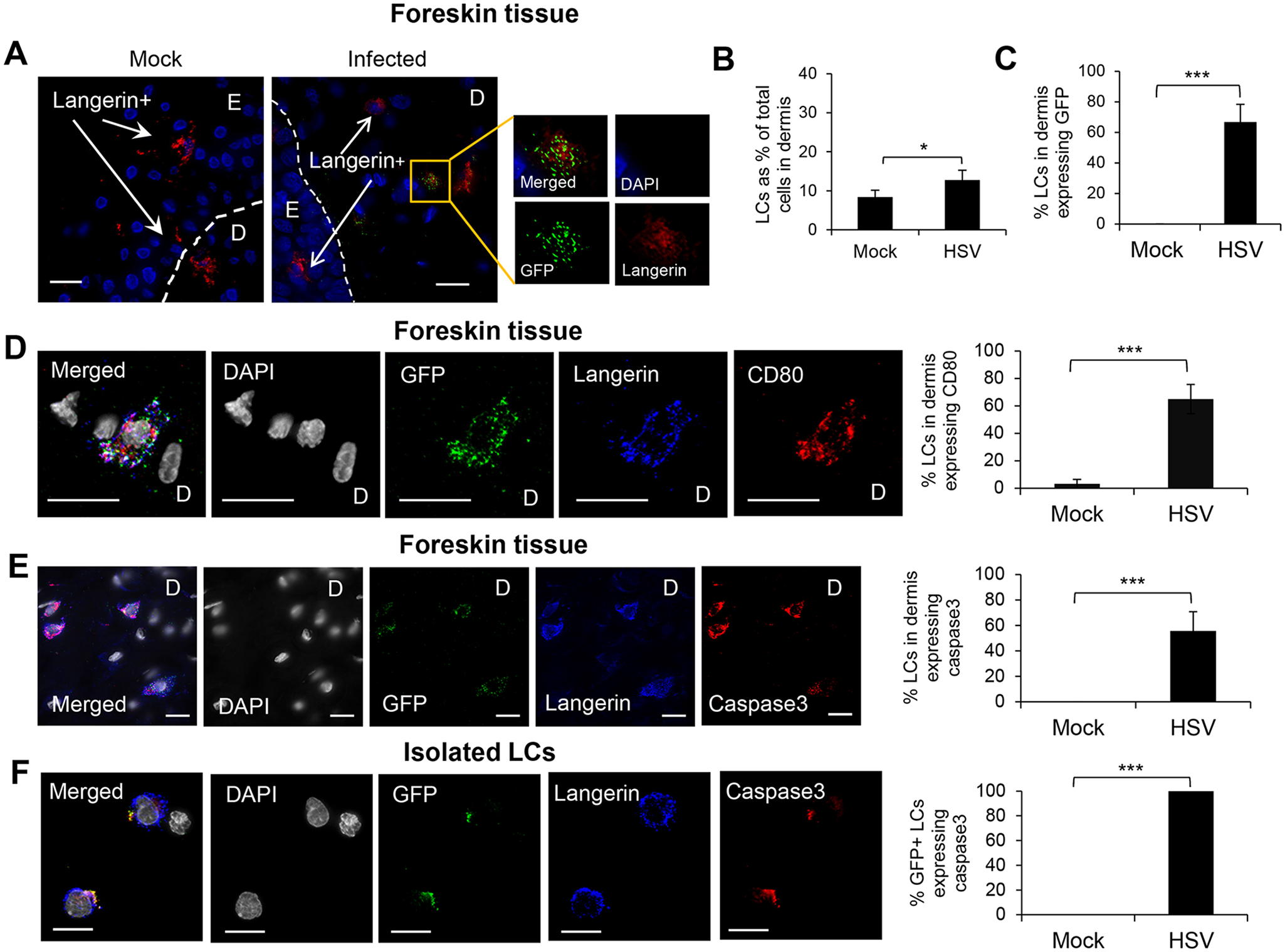 Fate of human LCs infected with HSV-1.