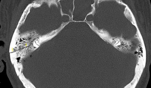 Nepetrózní fraktura – mastoidní segment, HRCT, axiální rovina. Fig. 5. Non-petrous bone fracture (mastoid), HRCT, axial plane.