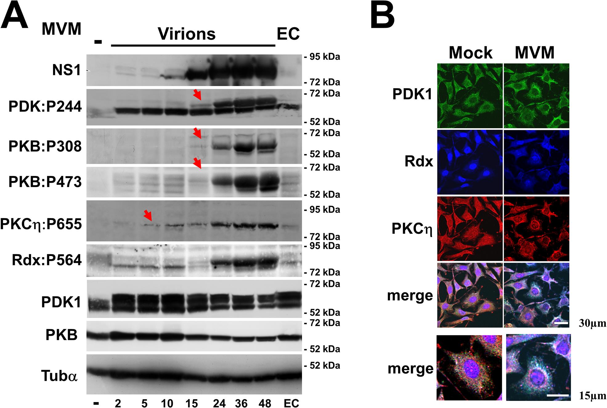 MVM-induced activation of the PDK1/PKC/PKB signaling cascade.
