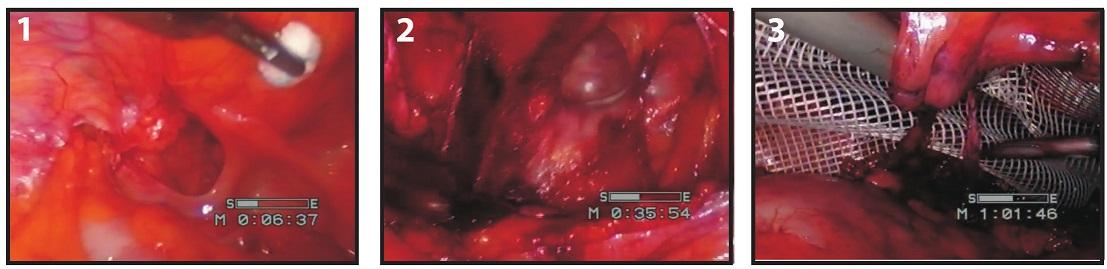Operace supravezikální kýly – pacient 2 Fig. 2: Hernia supravesicalis surgery – patient 2