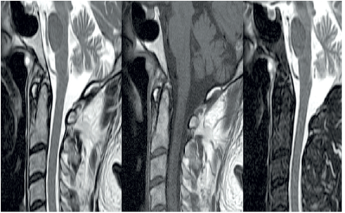 MRI –T1. Tornwaldtova cysta s obsahom proteínov.