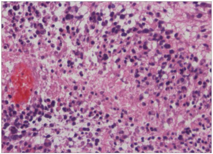 Hematoxylin-Eosin, geografická nekróza s palisádováním astrocytů v rámci GBM, zvětšení 200krát.