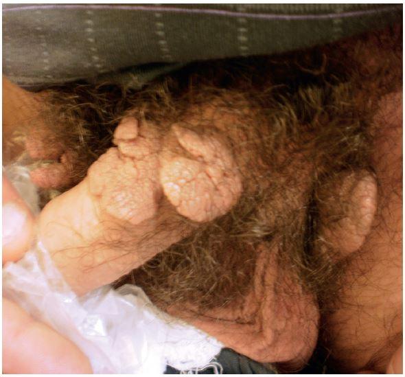 Condylomata acuminata na zevním genitálu u 35letého muže