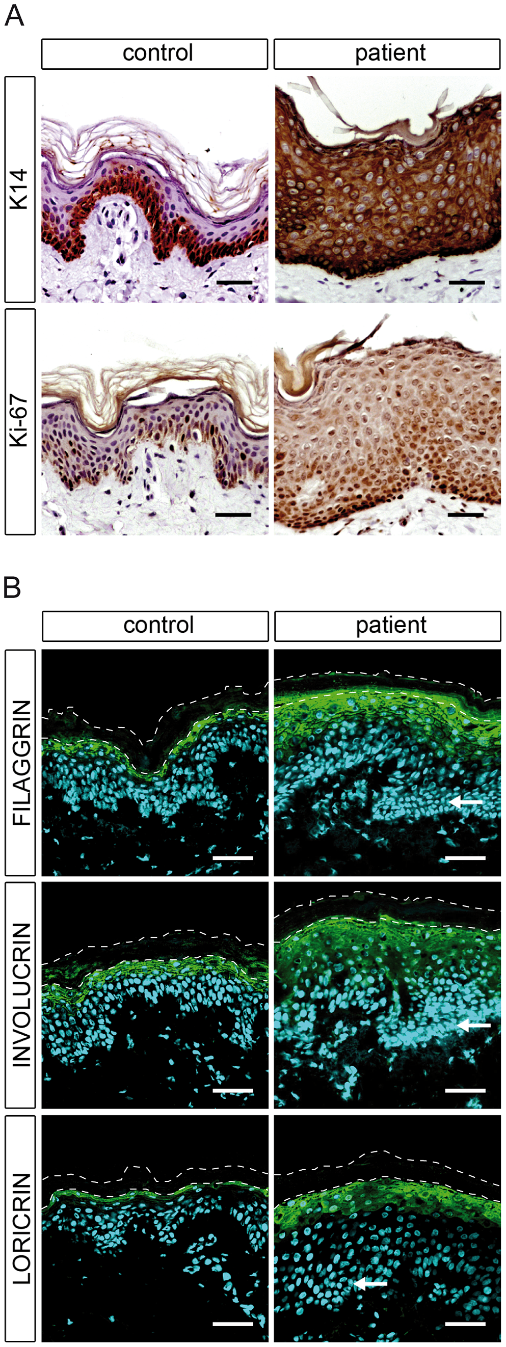 Epidermal differentiation in healthy control and patient H.
