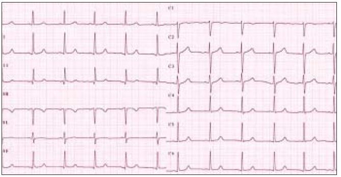Obr. 1b. EKG nález u pacientky za 3 mesiace.