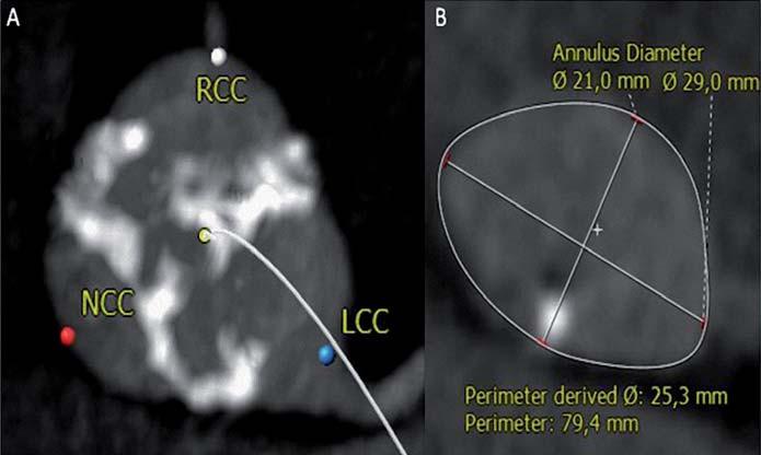 Trojcípá aortální chlopeň je symetrická v úrovni cípů (A), ale aortální anulus je výrazně eliptický (B) s velikostí (perimetr/π) 25 mm. Měření aortálního anulu pomocí jícnové echokardiografie typicky hodnotí kratší osu, v tomto případě bylo změřeno 21 mm.