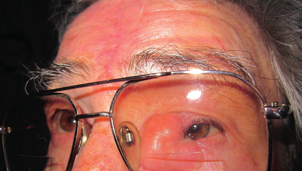 Pacientka absolvovala operáciu katarakty bilaterálne, foto s bifokálnymi okuliarmi (9/2010)