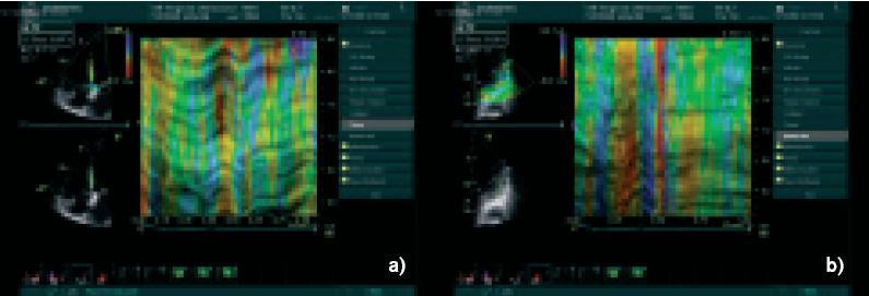 Obr. 3a a 3b. M-mode záznam rychlosti deformace (curved M-mode strain rate imaging) z bazální části septa (obr. 3a) a laterální stěny (obr. 3b). Je možno určit časový interval od začátku QRS-komplexu na elektrokardiogramu do začátku systolické deformace (žlutá barva na barevném záznamu) septa (činí 70 ms) či laterální stěny (činí 200 ms). Rozdíl těchto hodnot (130 ms) kvantifikuje tíži asynchronie počátku kontrakce (deformace).