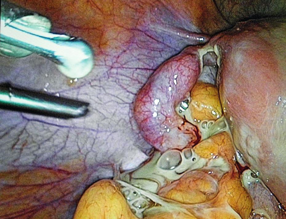 TOA – laparoskopická fáze operace.