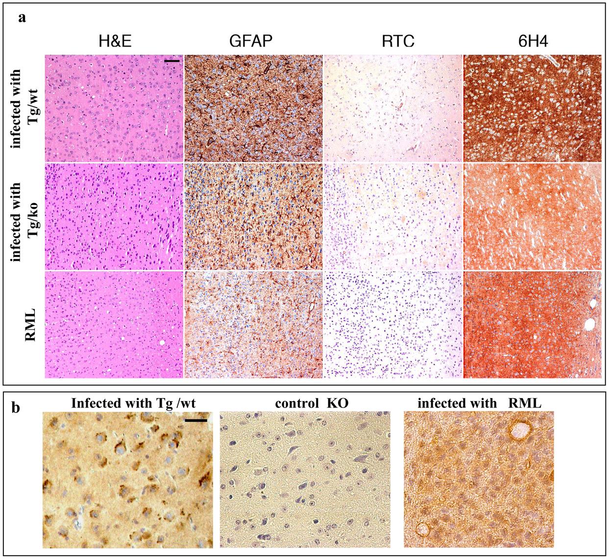 Transmission of TgMHu2ME199K prions to wt mice: pathology.