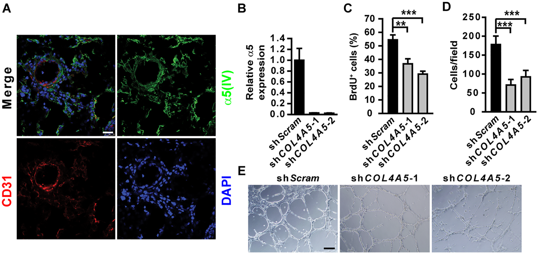 α5(IV) is expressed in endothelial cells and required for endothelial cell proliferation and tubulogenesis.