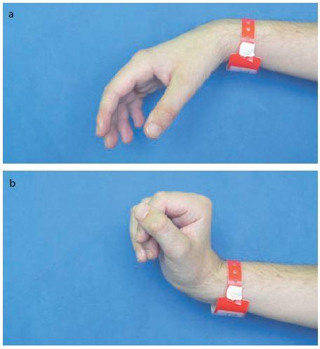 Náhradní funkční úchop tetraplegika s míšní lézí C6. Obr. 4a) Pasivní nastavení akra před úchopem, plegické prsty jsou ve volné semiflexi. Obr. 4b) S aktivní dorzální flexí zápěstí se při tenodéze hlubokých flexorů prstů přimknou prsty pasivně do dlaně. Fig. 4. Tenodesis grip of a tetraplegic patient with the C6 spinal lesion. Fig. 4a) Passive acrum setting prior to the grip, plegic fingers are in a loose semiflexion. Fig. 4b) Active dorsal flexion of the wrist with deep finger flexor tenodesis press the fingers passively into the palm.