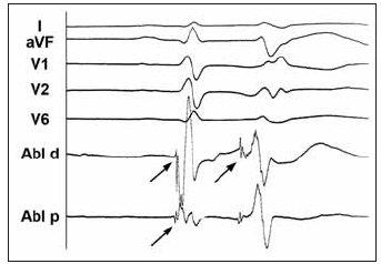 Povrchové EKG a intrakardiální elektrogram z oblasti komorové ektopie iniciující maligní arytmie u nemocného s idiopatickou formou FK. Intrakardiální elektrogram z oblasti zadního fasciklu levého raménka Tawarova během sinusového rytmu a při komorové extrasystolii dokumentuje přítomnost vysokofrekvenčního potenciálu s nízkou amplitudou (šipky). Tento potenciál předcházel komorovou aktivaci při extrasystole 60–80 ms, zatímco při sinusovém rytmu o pouhých 10–15 ms. Větší předčasnost při ektopii svědčí pro vznik v tkáni převodního systému.